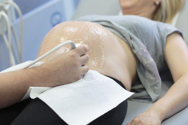 Pregnant-woman-having-an-ultrasound-scan.jpg